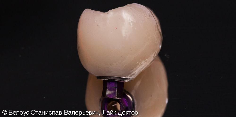 Установка импланта и коронки на импланте - фото №3