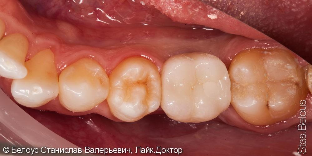 Установка импланта и коронки на импланте - фото №5