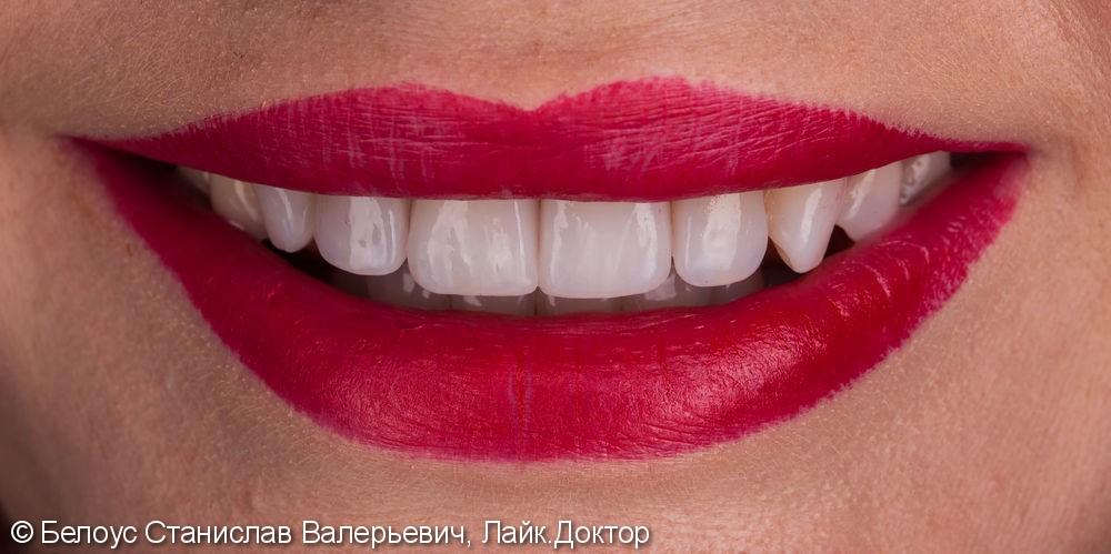 Виниры на передние зубы - фото №8
