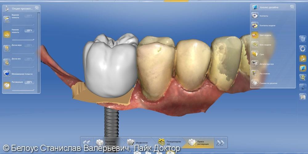 Протезирование на Имплантах по технологии CEREC - фото №8