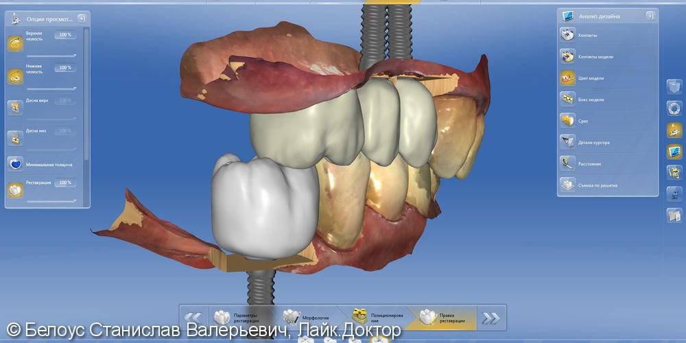 Протезирование на Имплантах по технологии CEREC - фото №10