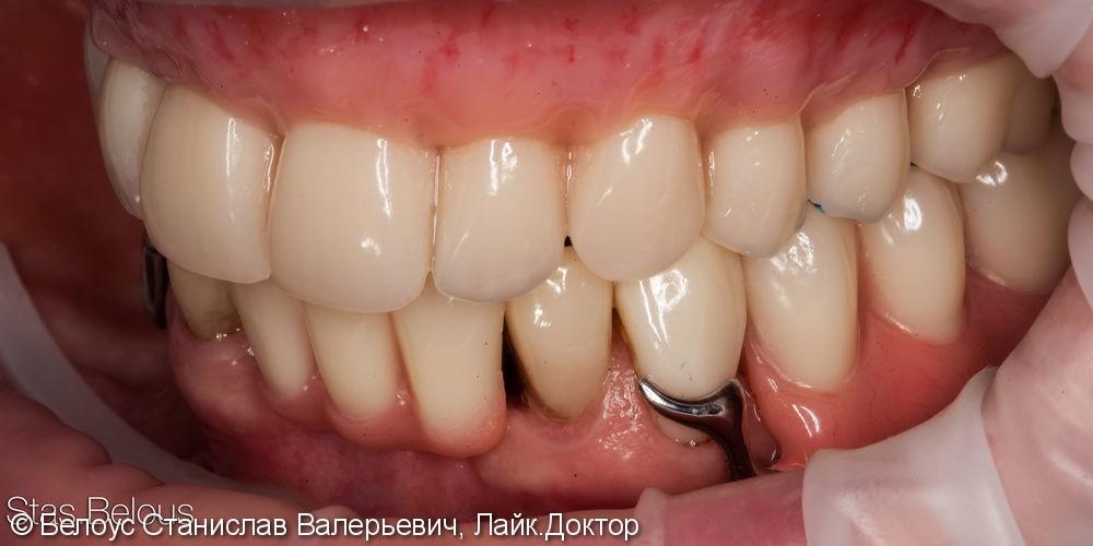 Съемные зубные протезы - фото №4