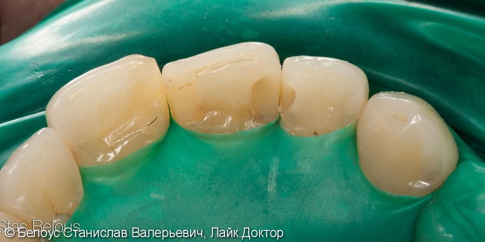 Лечение кариеса на передних зубах. ХУДОЖЕСТВЕННАЯ реставрация - фото №1