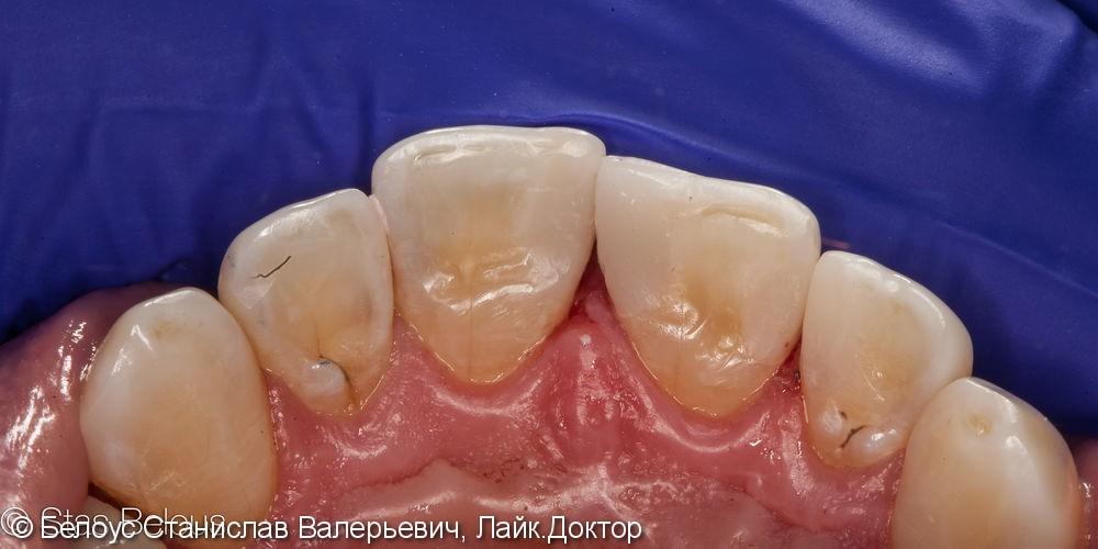 Лечение кариеса на передних зубах. ХУДОЖЕСТВЕННАЯ реставрация - фото №6