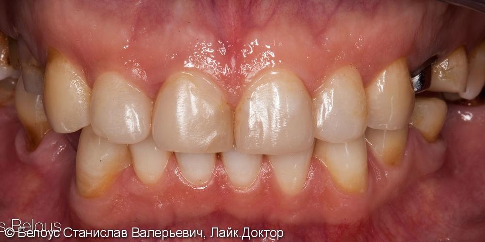 Коронки на передние зубы CEREC - фото №1