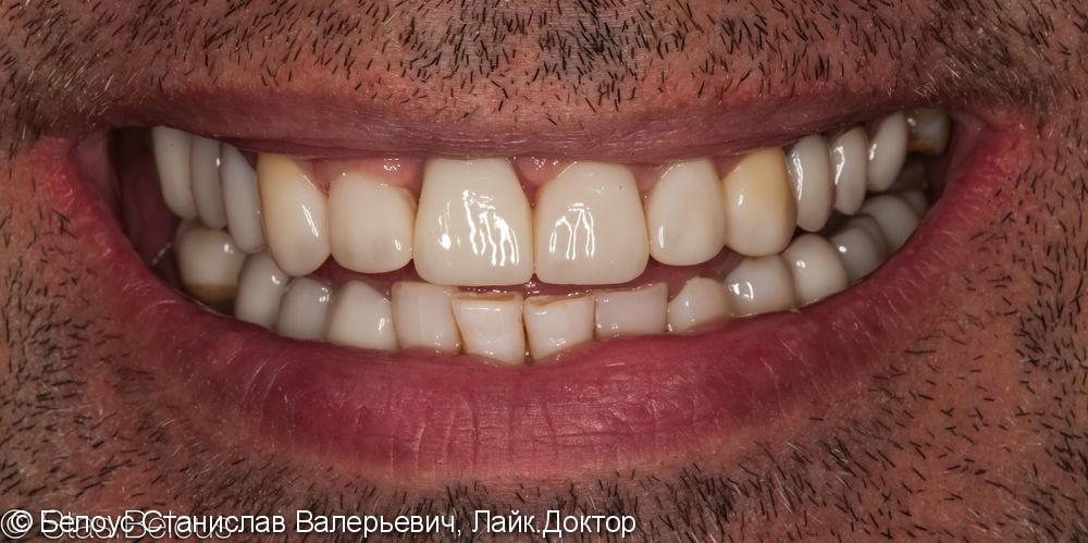 Коронки на передние зубы CEREC - фото №4