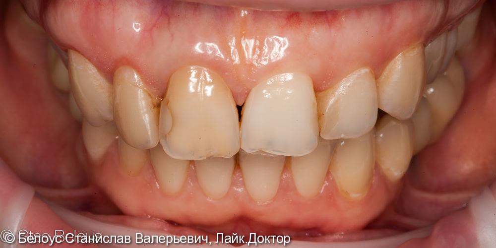 Виниры на передние зубы - фото №1