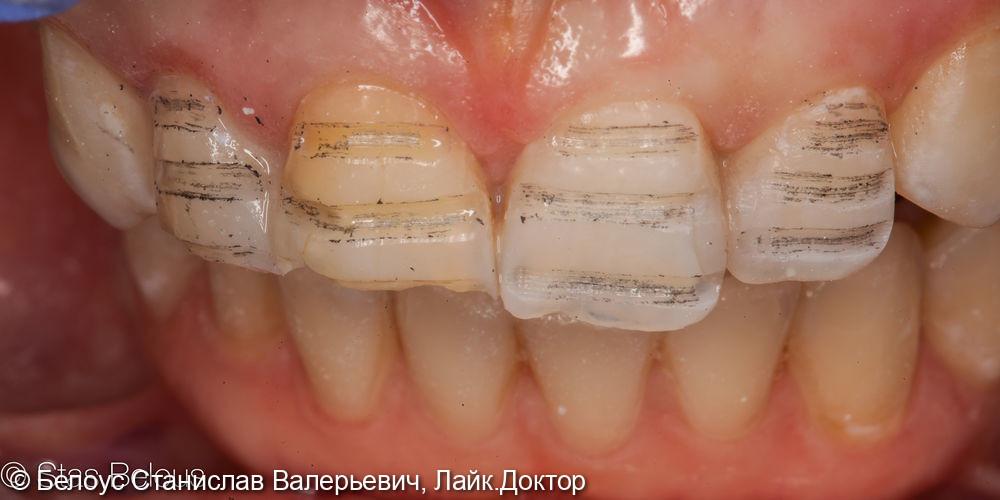 Виниры на передние зубы - фото №2
