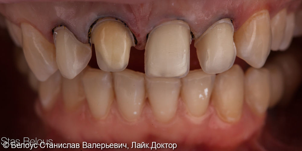 Виниры на передние зубы - фото №3