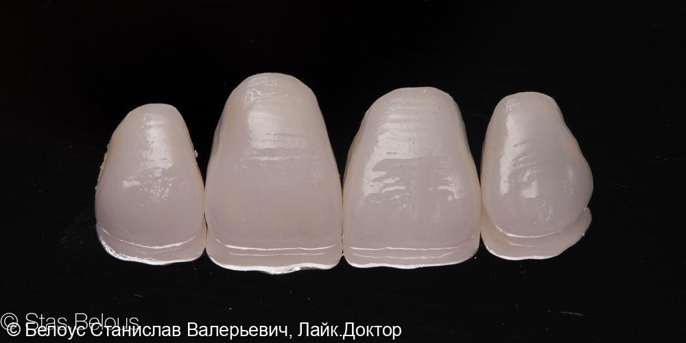Виниры на передние зубы - фото №4