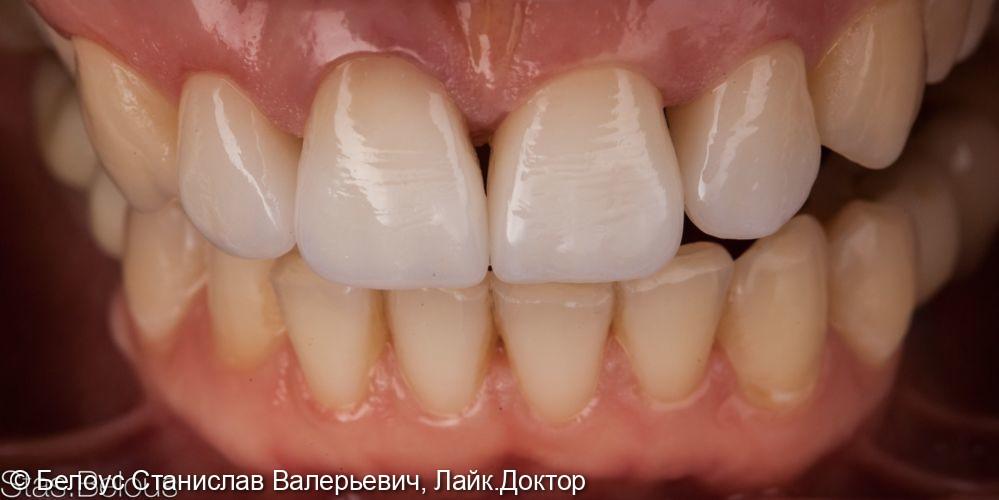 Виниры на передние зубы - фото №6
