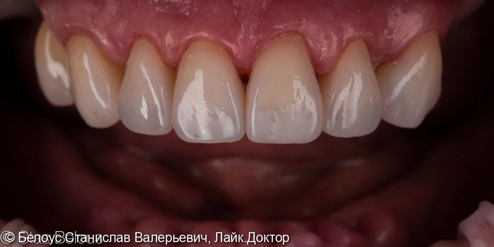 Коронки CEREC на передние зубы - фото №6
