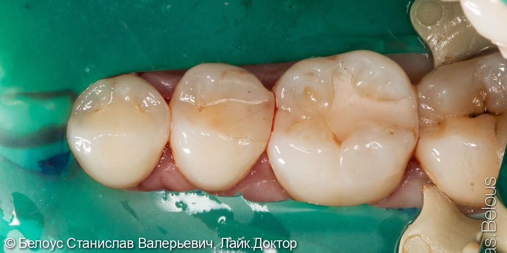 Лечение кариеса керамической вкладкой и пломбой - фото №1