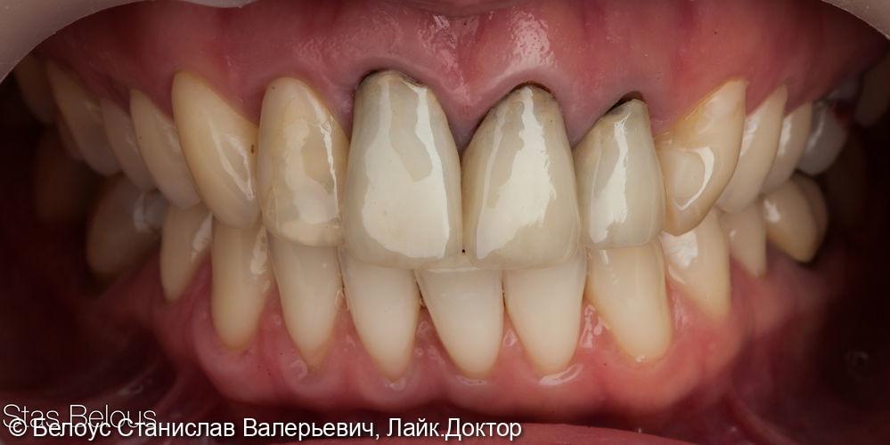 Работа с передними зубами коронки на передние зубы - фото №1