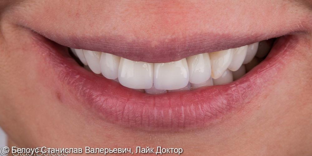 Работа с передними зубами коронки на передние зубы - фото №2