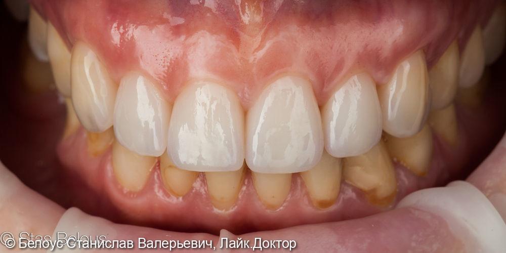 Постановка коронок и виниров на передние зубы - фото №2