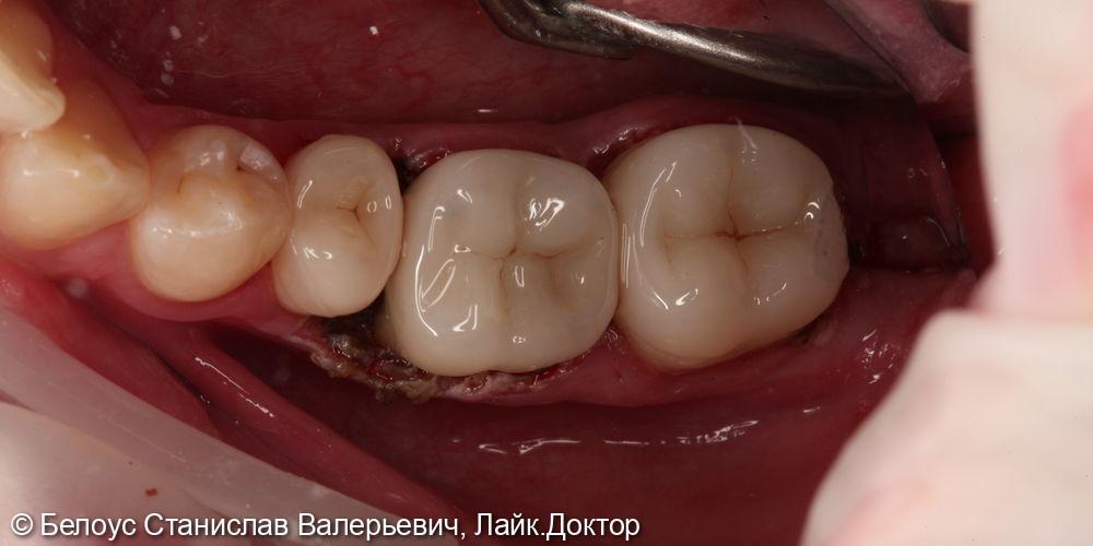 Установка цельнокерамических коронок 4.5,4.6,4.7 зубов - фото №3
