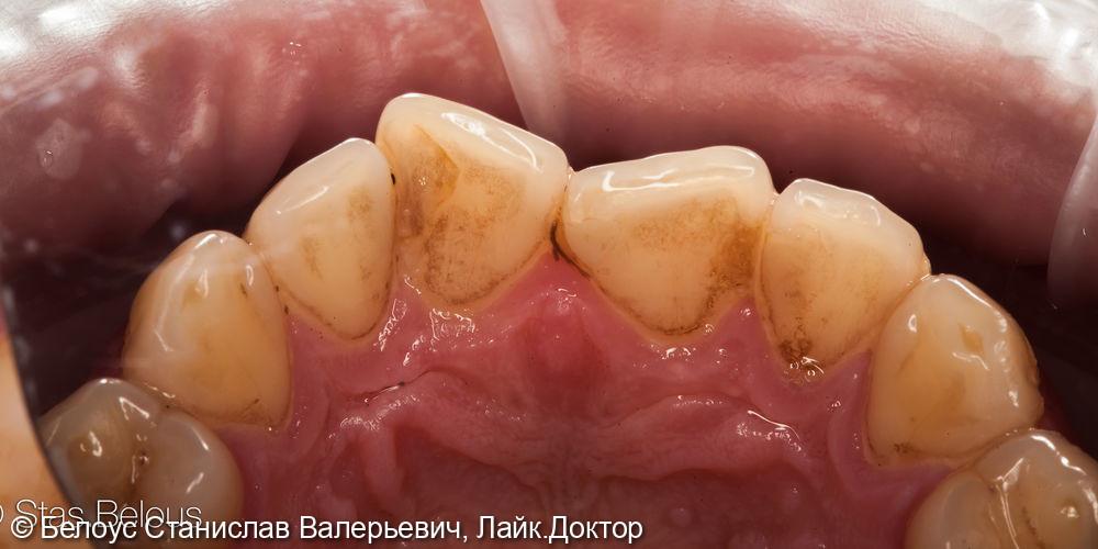 Профессиональная гигиена полости рта - фото №1