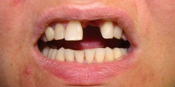 Восстановление центрального резца на верхней челюсти при помощи мк коронкой на импланте - фото №1