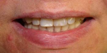 Восстановление центрального резца на верхней челюсти при помощи мк коронкой на импланте - фото №5