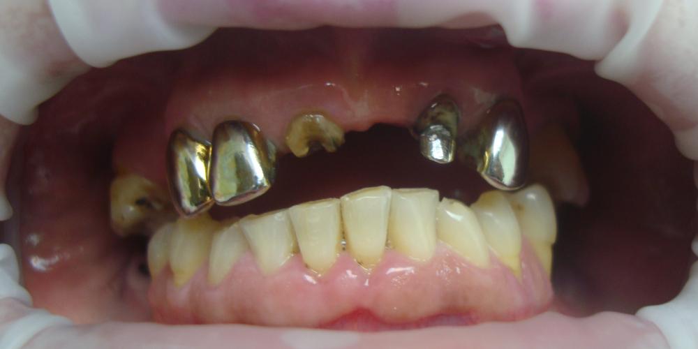 Восстановление отсутствующих зубов несъемным мостовидным протезом - фото №1