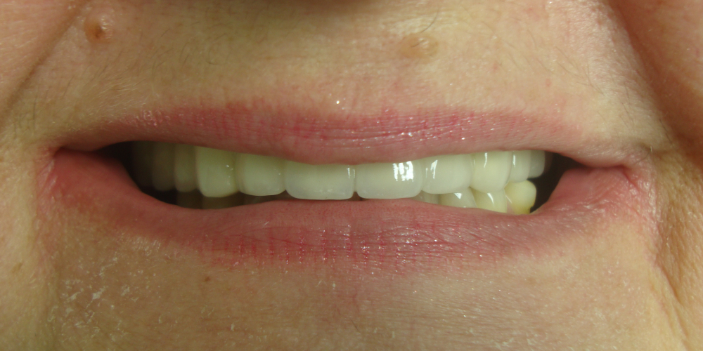 Восстановление отсутствующих зубов несъемным мостовидным протезом - фото №2