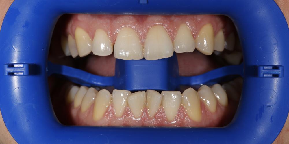 отбеливание зубов иркутск стоимость