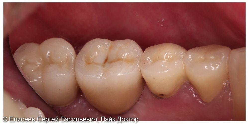 Металлокерамическая коронка зуба 46 с опорой на имплантат - фото №2