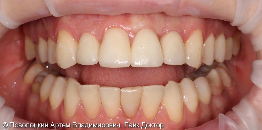 Одномоментная имплантация Осстем 12,21,22 после удаления зубов, цирконевые коронки на имплантатах и винир на 11 зубе - фото №14