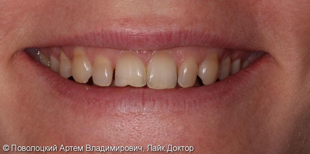 Виниры E-max на верхние зубы с клыка по клык - фото №1