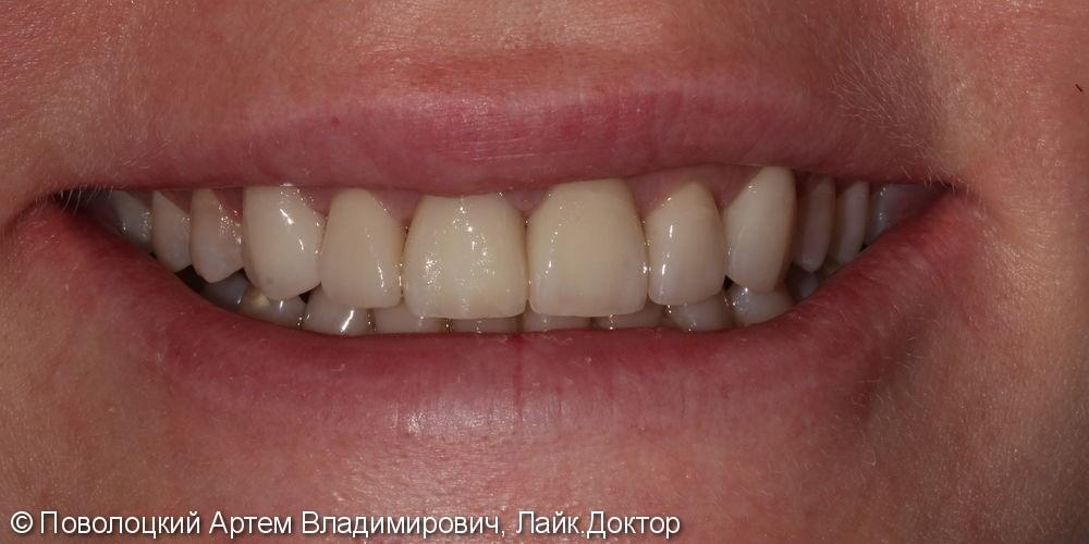 Виниры E-max на верхние зубы с клыка по клык - фото №9
