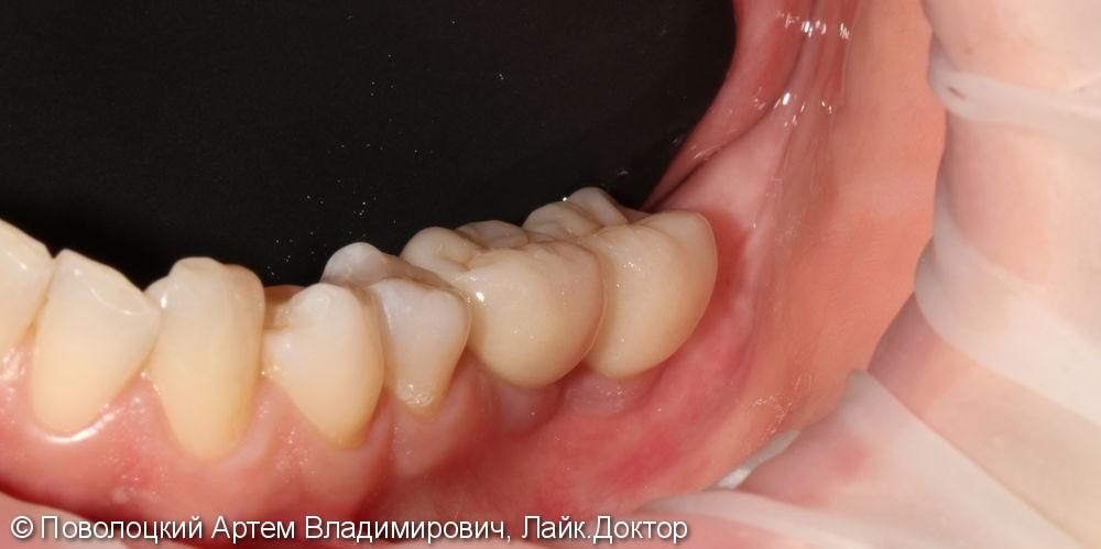 имплантация Осстем 36,37 зубы, коронки из оксида циркония с вестибулярной облицовкой - фото №8