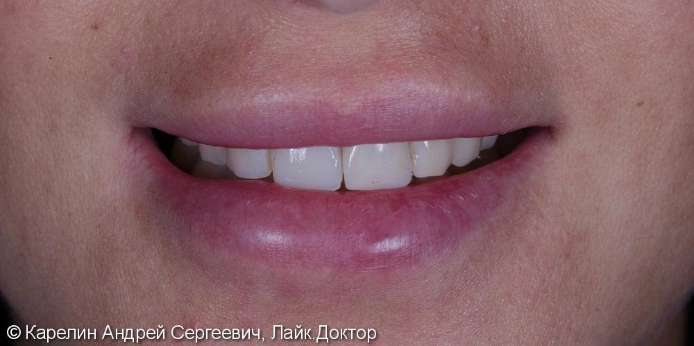 Эстетическая реабилитация фронталной группы зубов с помощью имплантата, коронок и виниров E.max - фото №1