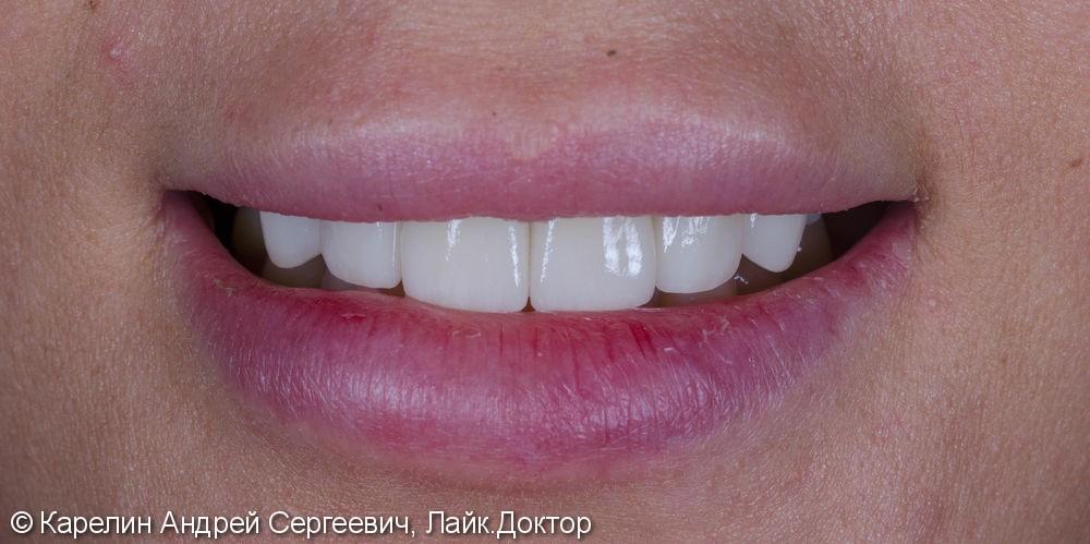 Эстетическая реабилитация фронталной группы зубов с помощью имплантата, коронок и виниров E.max - фото №14