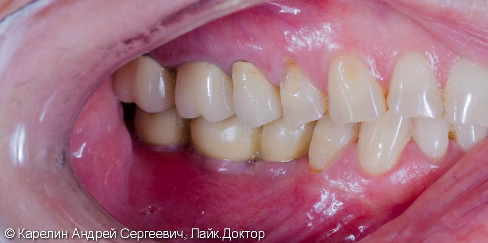 Одномоментная с удалением установка 3 имплантатов на нижней челюсти и протезирование металлокерамическими коронками. - фото №14