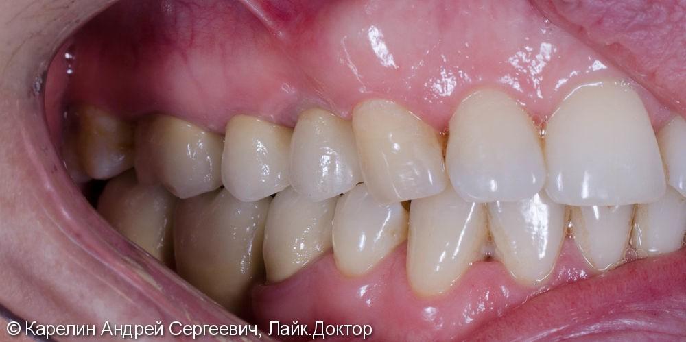 Восстановление утраченного зуба 1.4 с помощью Металлокерамической коронки на имплантате. - фото №15