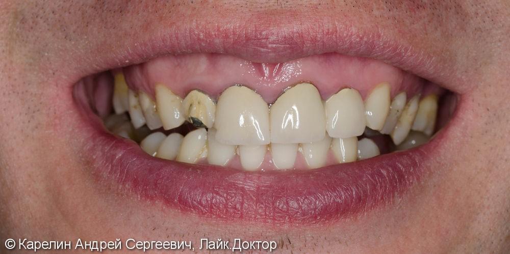 Подготовка фронтальных зубов к ортодонтическому лечению - фото №1