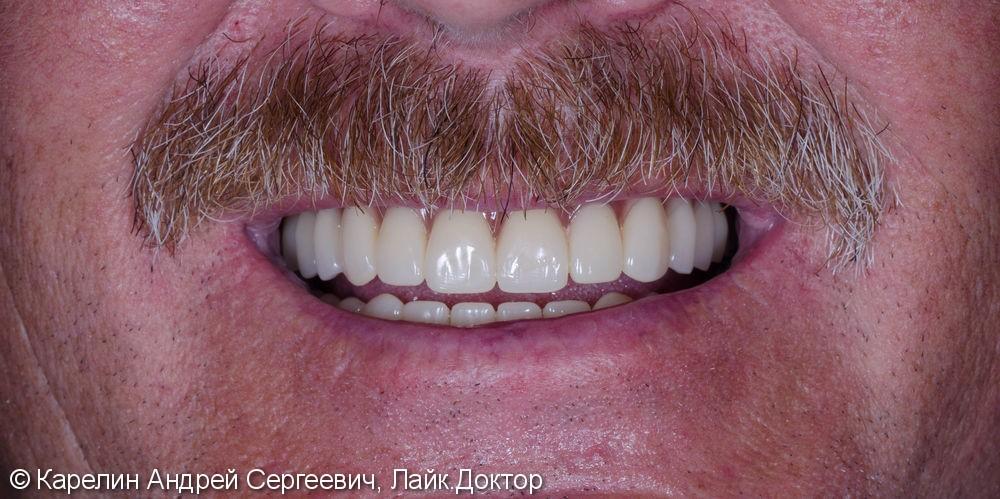 Лечение пациента с полной вторичной адентией обеих челюстей. - фото №9