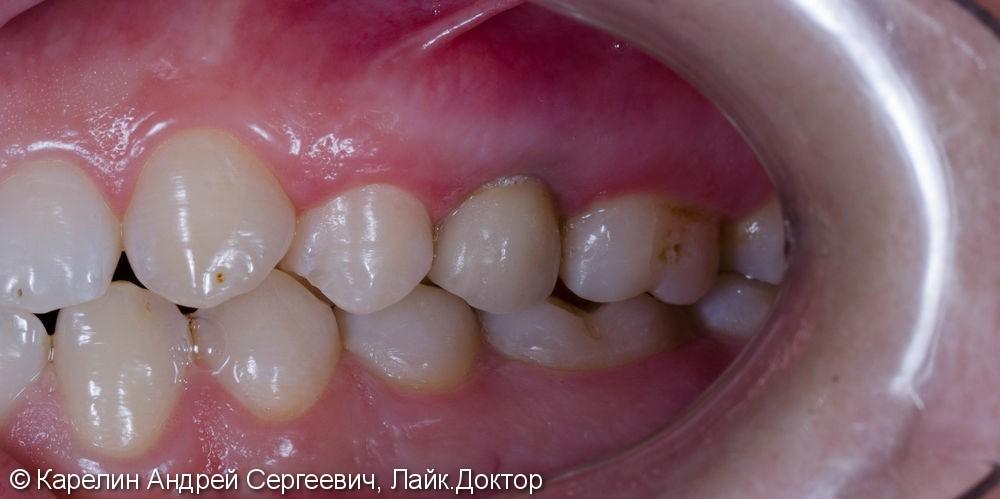 Восстановление зуба 2.5 с помощью имплантата. - фото №10