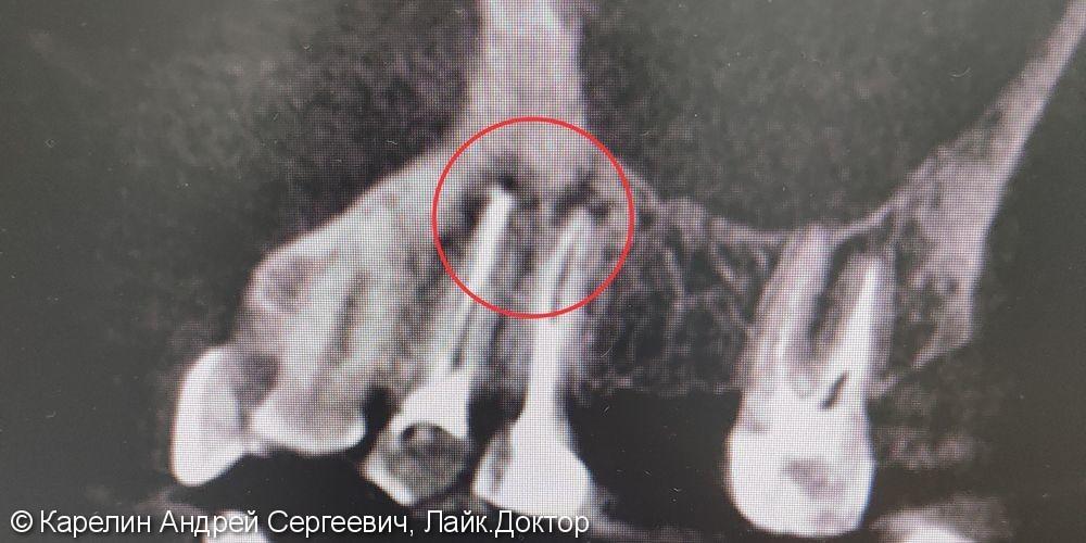 Лечение периодонтита зубов 1.4 и 1.5 перед протезированием. - фото №1