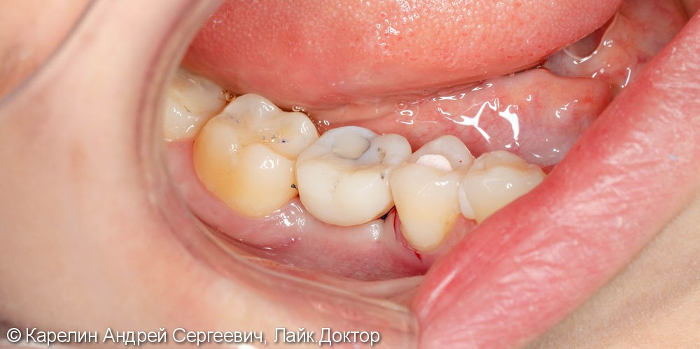 Новый зуб за 1,5 часа! - фото №8