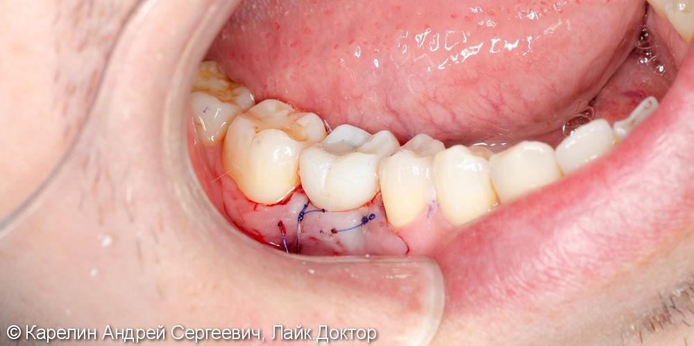 Новый зуб за 1,5 часа - фото №6