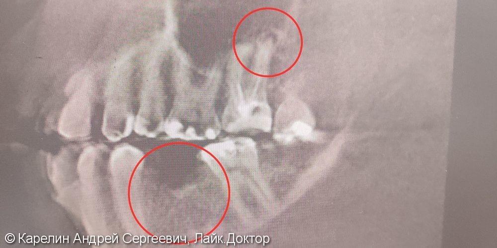 Лечение гранулематозного периодонтита зуба 2.7, удаление зуба 2.8, имплантация в области 3.6 зуба - фото №1