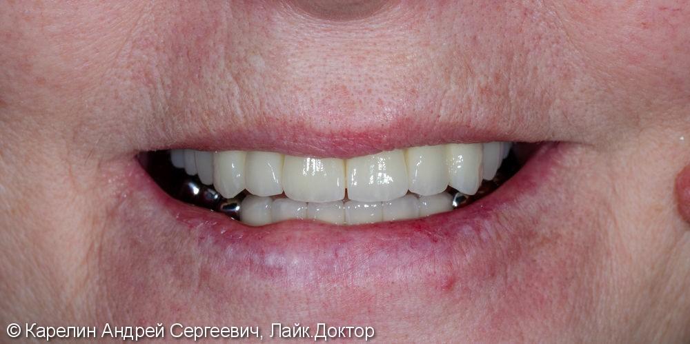 Лечение частичной вторичной адентии обеих челюстей - фото №14