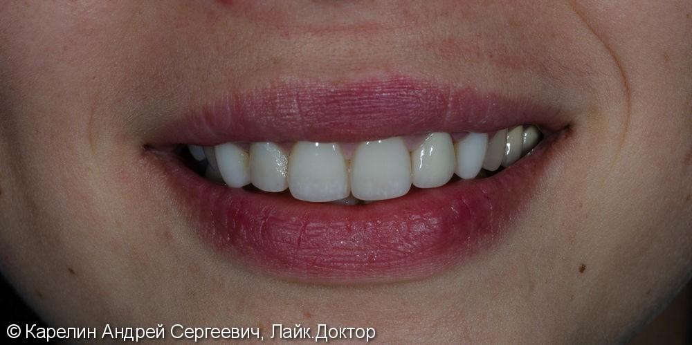Восстановление зуба 2.2 с помощью культевой вкладки и коронки на основе диоксида циркония - фото №8