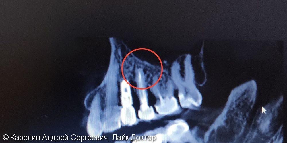 Лечение хронического гранулематозного периодонтита зуба 1.5. Установка имплантата в область 1.4 - фото №2