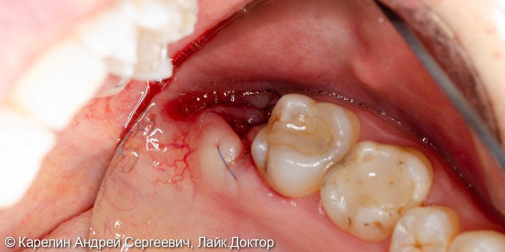Удаление 2.8 зуба - фото №5