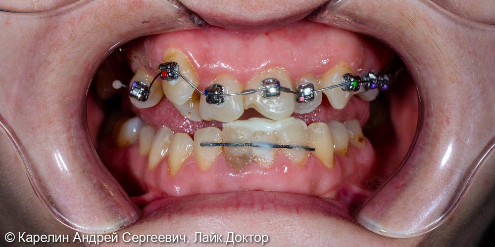 Санация полости рта и установка брекет системы - фото №13