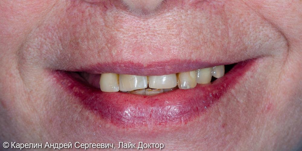Тотальное протезирование обеих челюстей с помощью металлокерамических коронок и бюгельных протезов - фото №1
