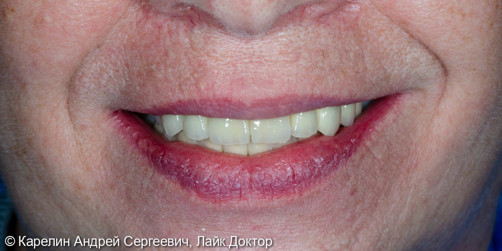 Тотальное протезирование обеих челюстей с помощью металлокерамических коронок и бюгельных протезов - фото №22